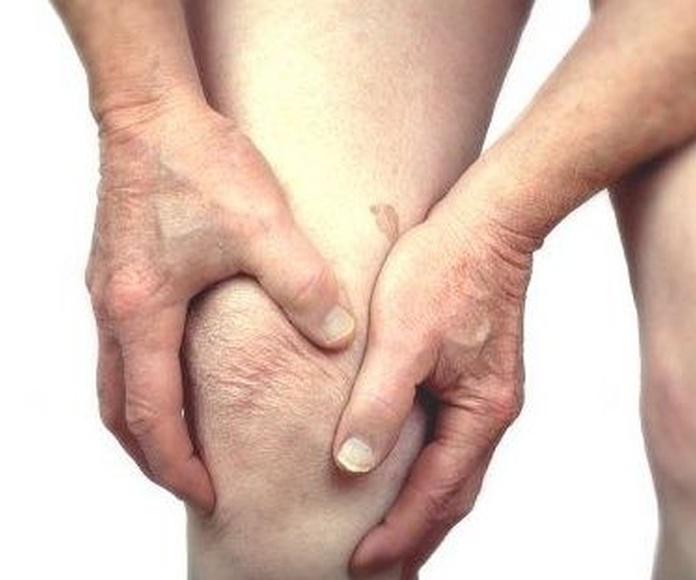 Tratamiento de la artrosis y la artritis en Albacete