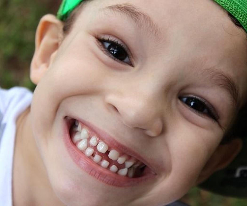 Lo que necesitas saber sobre las caries en los niños
