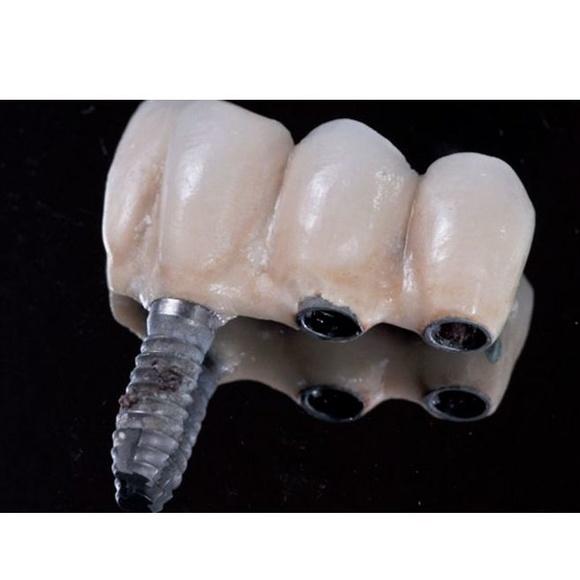 Implantologia : Tratamientos dentales de Presedo Alberdi, M.
