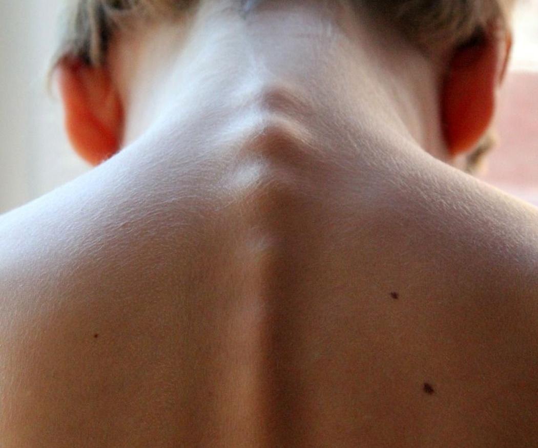 ¿Qué colchón me conviene si tengo problemas de espalda?