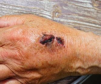 Infiltraciones de toxina botulinica (Botox): Nuestros tratamientos de Rehavitall: Dr. González Llorca
