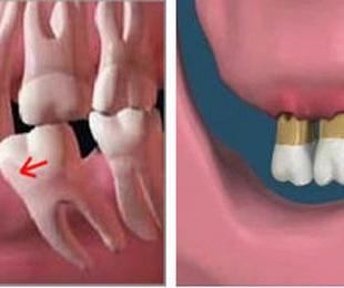 Consecuencias de la perdida de un diente.