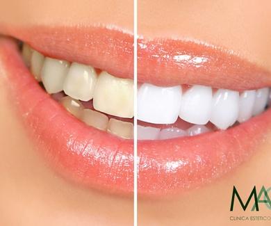 ¿Es seguro el proceso de blanqueamiento dental?