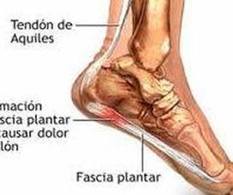 Enfermedad de haglund: Cirugía del Pie de Clínica Podológica José Mª Pe Duarte
