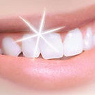 Blanqueamiento dental en Fuenlabrada