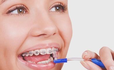 La ortodoncia y mis encías