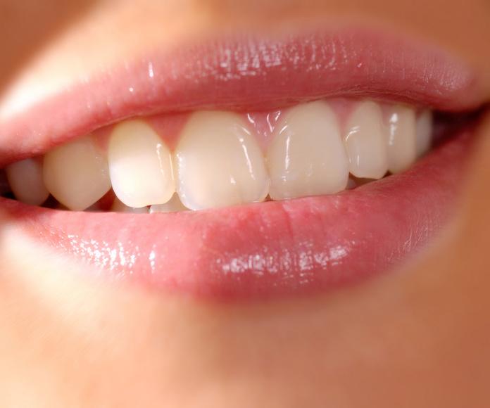 Estética dental. Sonrisa.