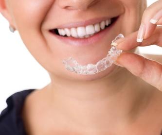 Implantología: Servicios de Dental Ollerías