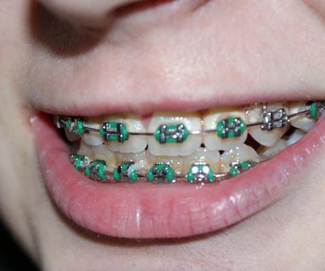 ¿Hay una edad indicada para que los niños empiecen un tratamiento de ortodoncia?