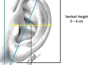 Cirugia de la oreja: Otoplastia