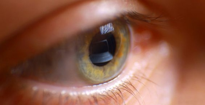 Terapia Visual: Servicios de Optoteka Óptica y Audio