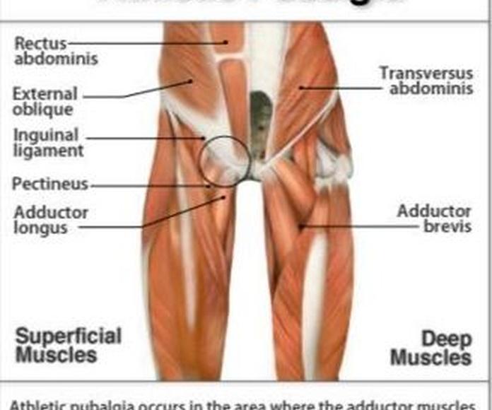 Causas y tratamiento de la pubalgia