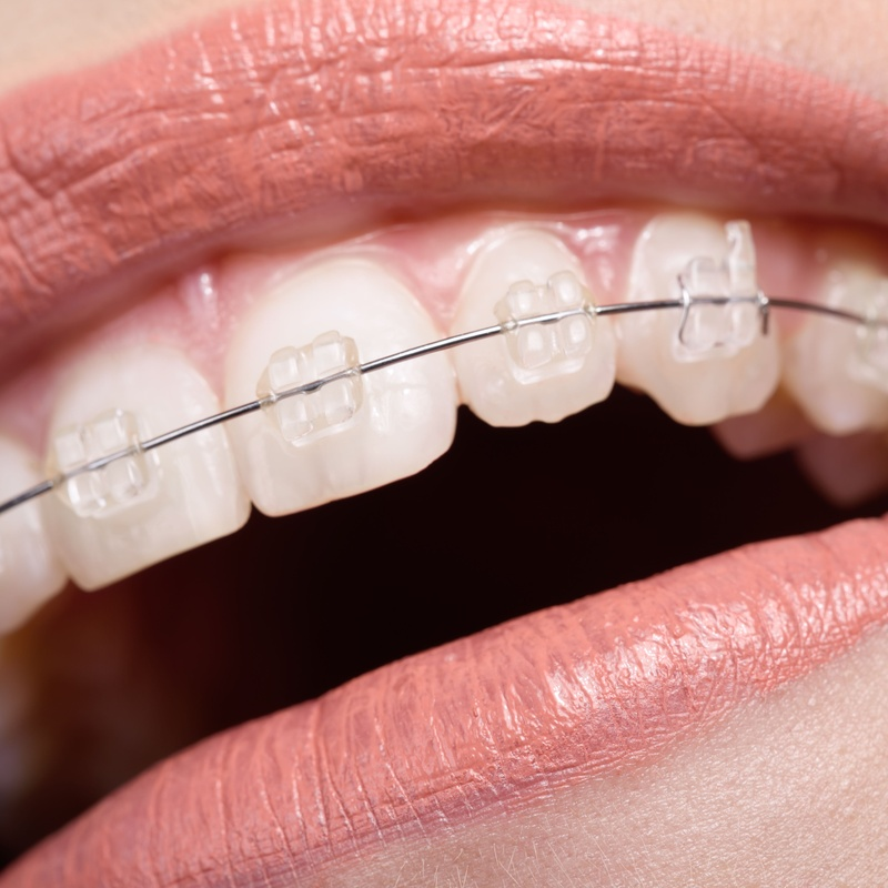 Ortodoncia: Servicios de Humanes Dental, S.L.
