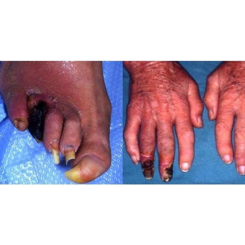 Nuestros tratamientos: Productos y servicios de Consulta Barreiro-Vascular (Dr. A. Barreiro Mouro)