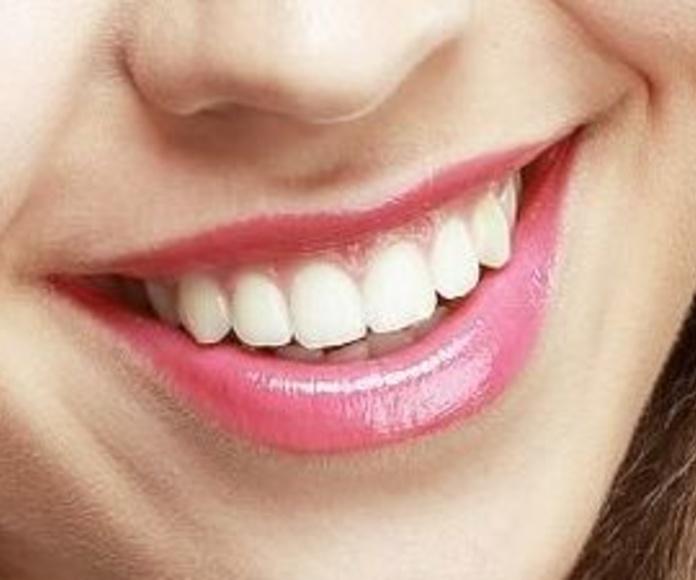 Blanqueamiento dental: Tratamientos de Clínica BP Bucal y Podológica