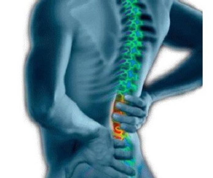 Subluxación vertebral:  Cuidado quiropráctico  de L'illa Quiropràctica