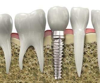 Prótesis personalizada: Servicios de Dental Ollerías