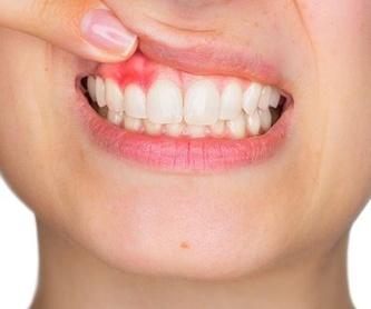 Ortodoncia : Tratamientos de Clínica Dental Tàrrega - Guissona