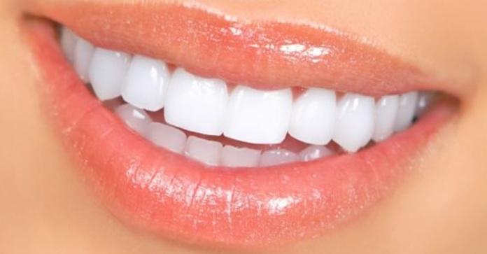 Blanqueamiento: Especialidades de Clínica Dental Martín
