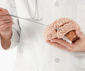 Estudios neurológicos en Madrid
