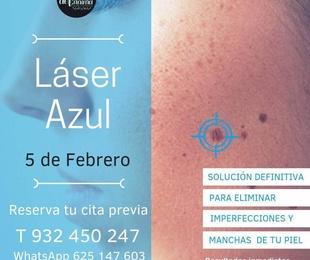 Jornada especial Láser Azul (5 febrero 2019)