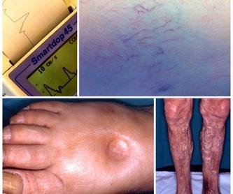 Valoración hemodinámica vascular con ultrasonidos (Doppler y Eco-Doppler): Productos y servicios de Consulta Barreiro-Vascular (Dr. A. Barreiro Mouro)