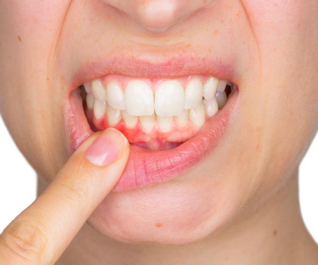 La importancia de tratar a tiempo la gingivitis