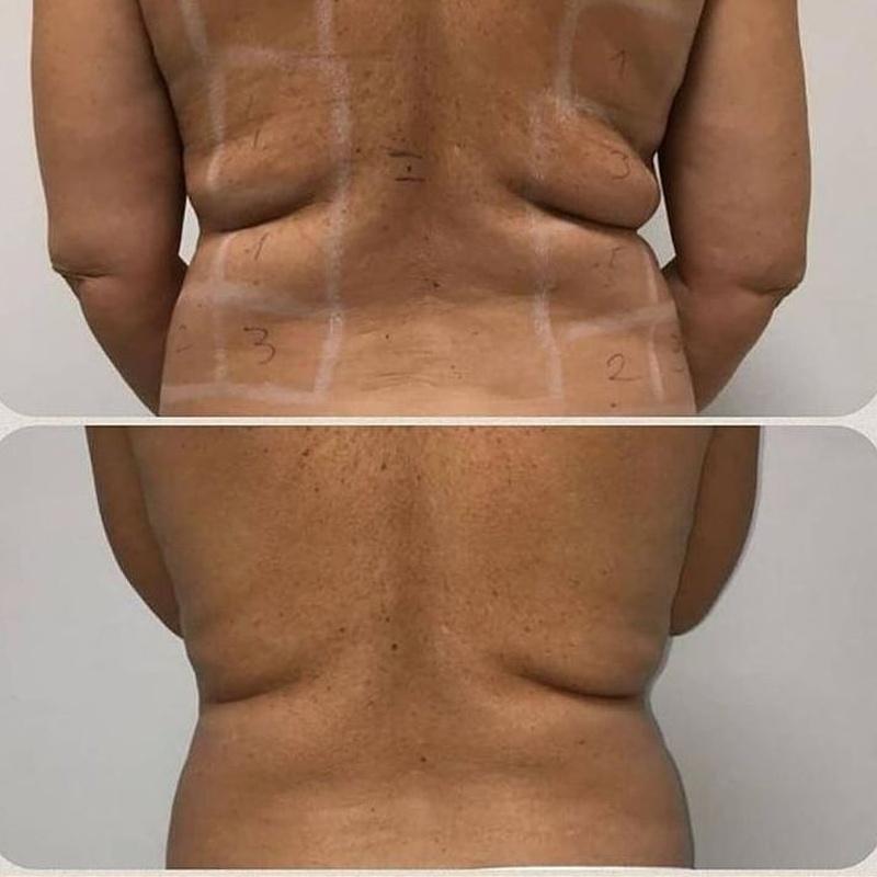 Liposucción sin cirugía barrio del pilar : Servicios de Duo Stetica