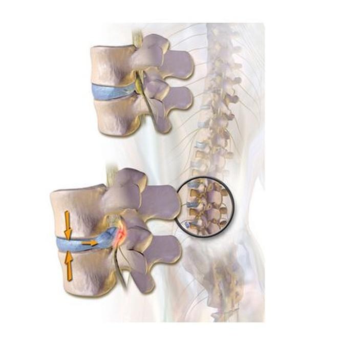 ¿Cuál es el mejor alivio para una hernia discal?
