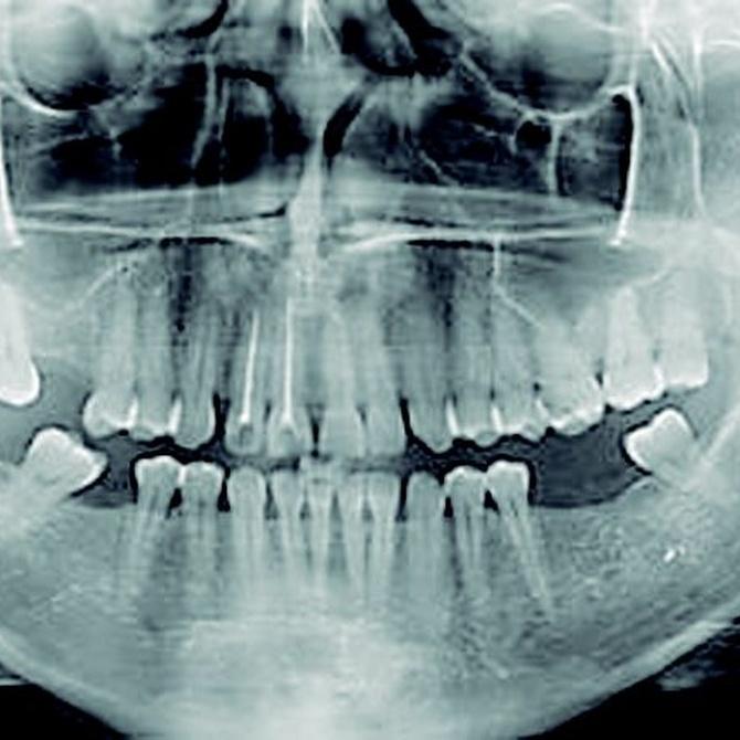 La revolución del TAC dental