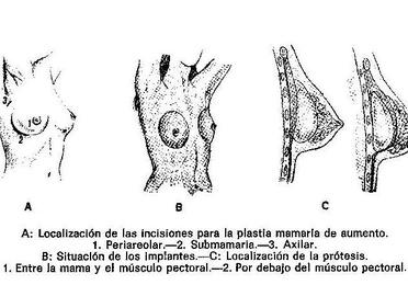 Cirugia de aumento de pecho