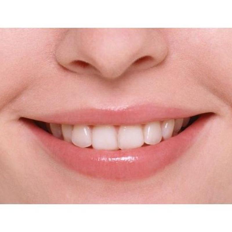 Estética dental: Tratamientos de Lucía González Botana