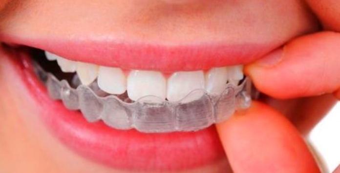 Bruxismo : Tratamientos de Clínica Dental Sant Roc