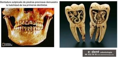 La odontología hace 2500 años ........