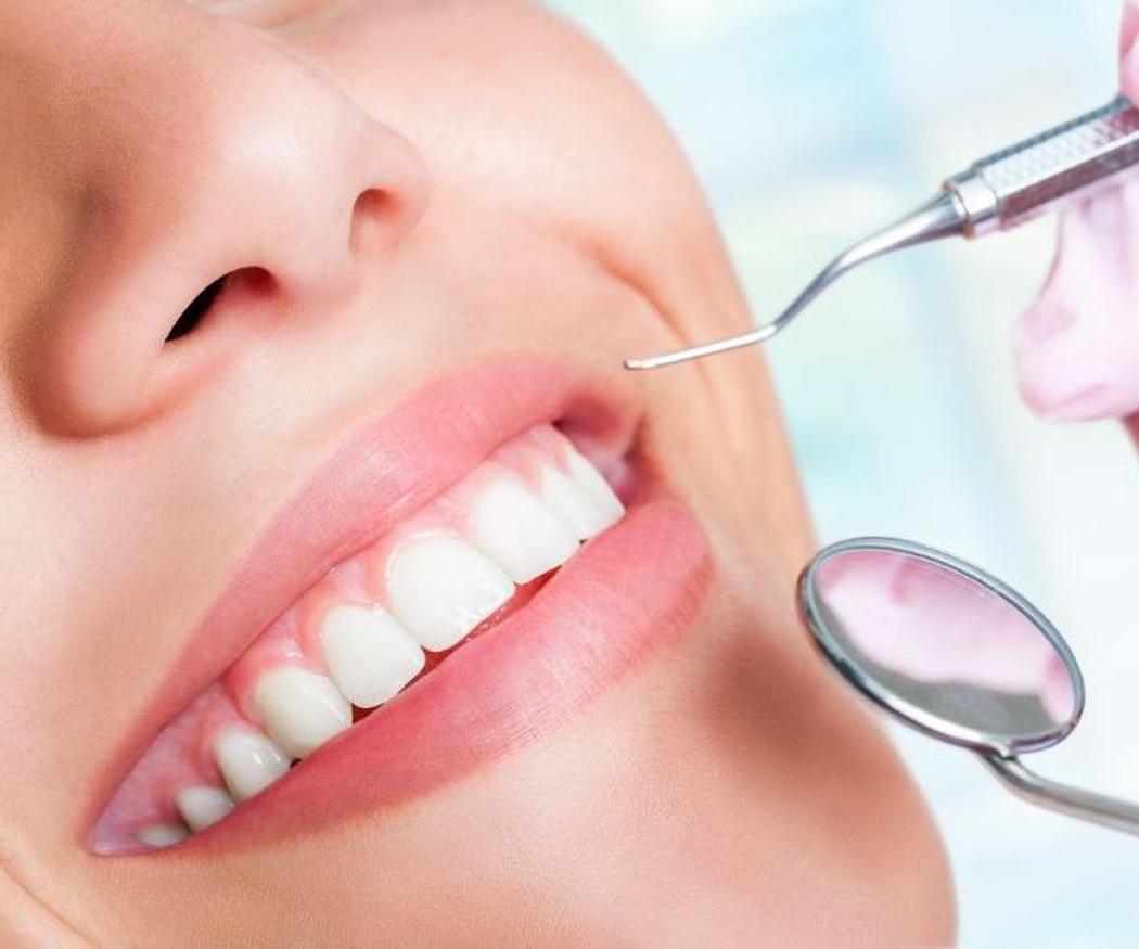 Principales tratamientos de estética dental