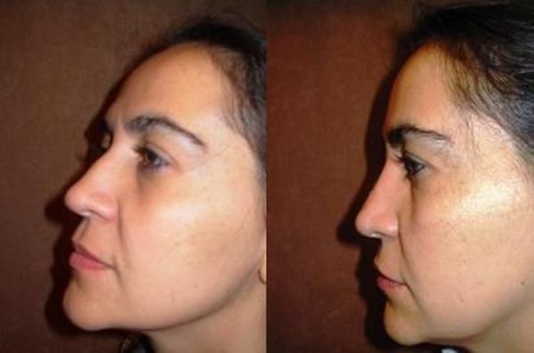 Rinomodelación ( Rinoplastia sin cirugía)  : CIRUGIAS Y TRATAMIENTOS de Clínica Doctor Soriano