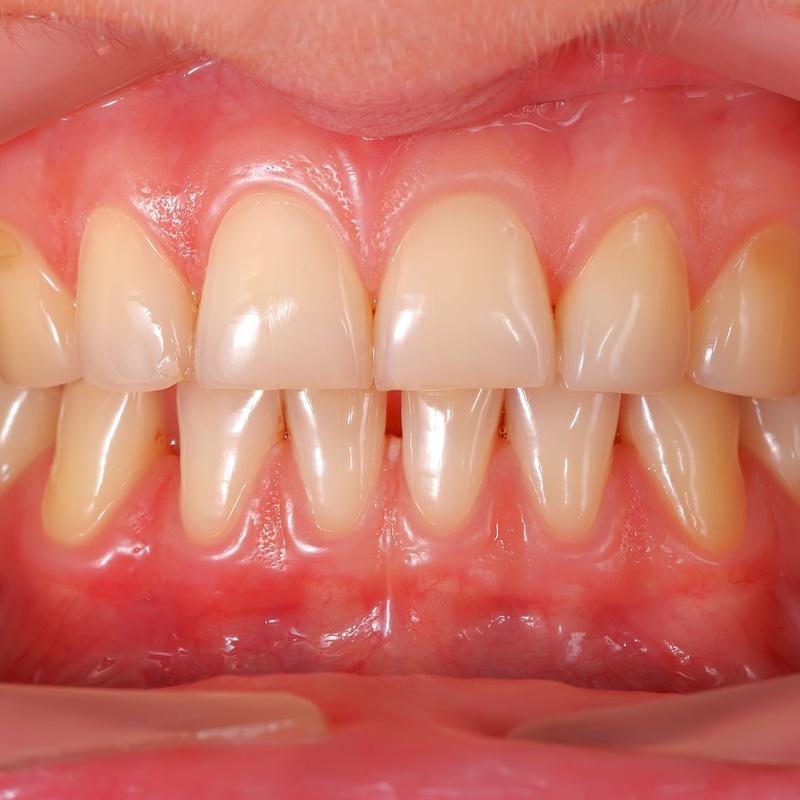 Ortodoncia: Tratamientos de Centro Médico Dental Capitol