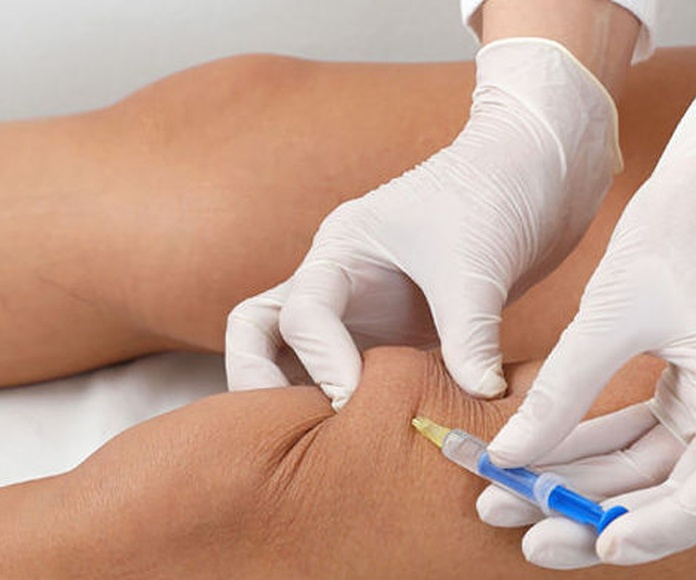Mesoterapia Homeopatica