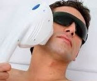 Tratamiento facial con IPL