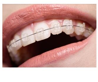 ORTHOAPNEA: Tratamientos de Clínica Dental Dra. Ana Lucía