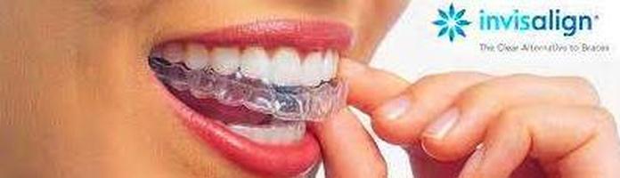Ortodoncia invisible Invisalign: Tratamientos de Clínica Dental Neardental