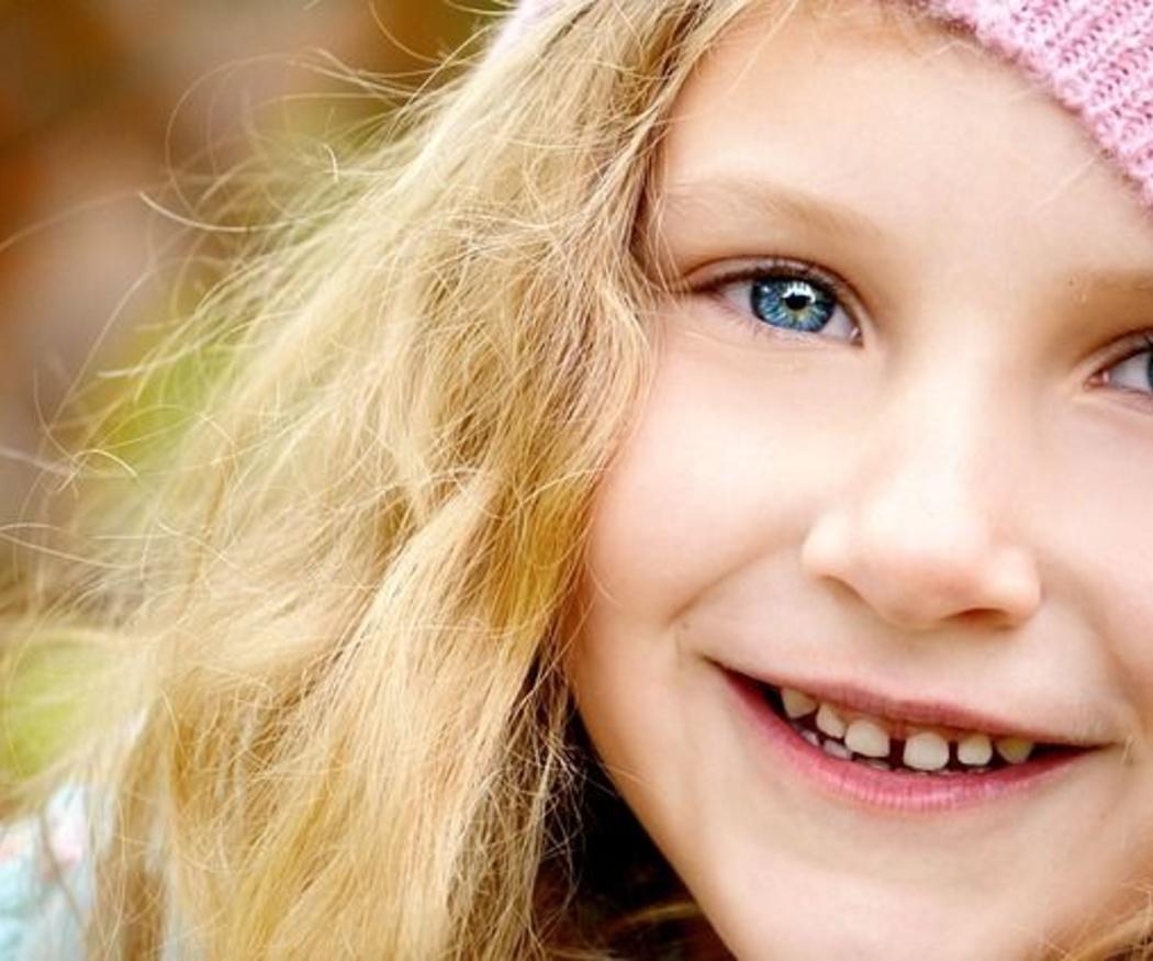 Cómo afectan las caries a los dientes de leche