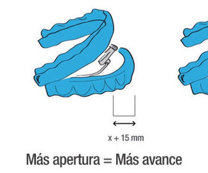 Dispositivo avance mandibular en Madrid