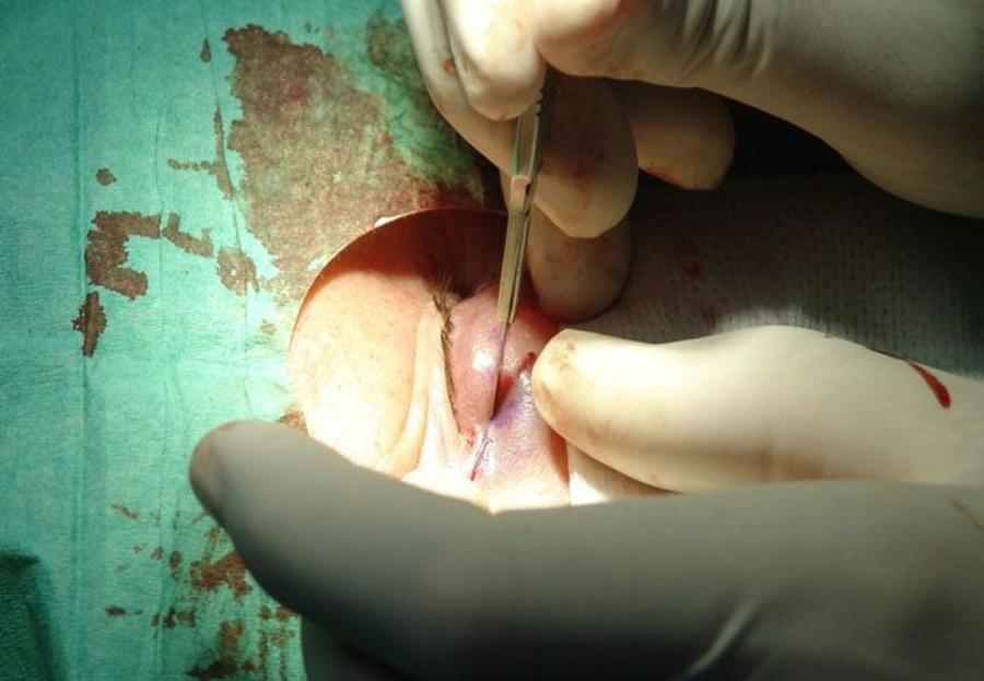 ¿En qué consiste la blefaroplastia?