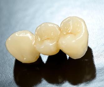 Odontología conservadora: Servicios de Clínica Dental Dr. Esteve Padrós
