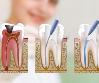 Prótesis sobre implantes: Tratamientos de Tuboca+ Clínica dental Goya