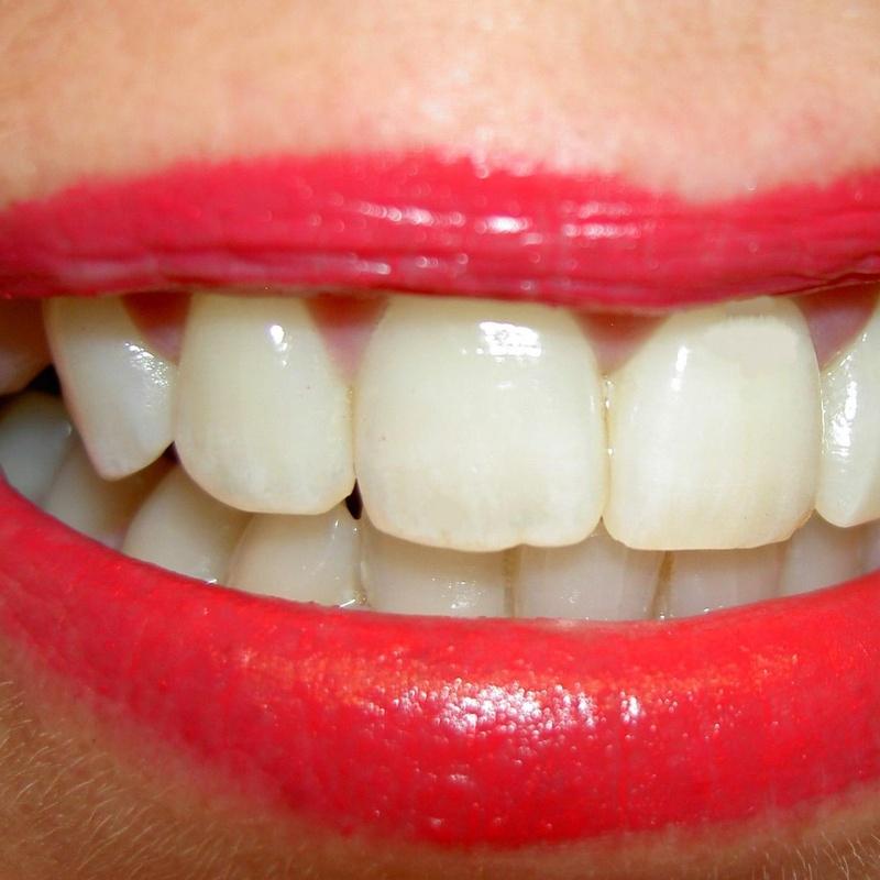 Obturaciones : Nuestros Tratamientos de Clínica Dental Rafael Menendez