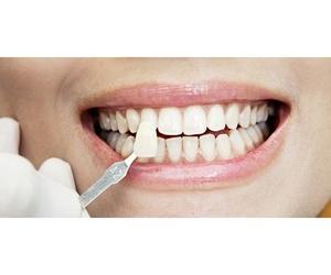 Todos los productos y servicios de Clínicas dentales: Clínica Dental Javier Rodríguez Nogueira