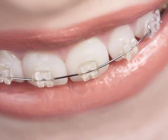 Prótesis dental y oclusión: Nuestros servicios de Clínica Dental Garraf