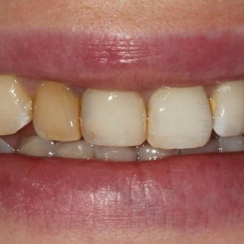 Clínica dentales en Chamartín, Madrid